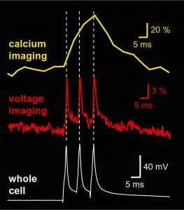 Sequential dendritic voltage imaging and dendritic calcium imaging from the same region of interest on a basal dendrite of layer 5 cortical pyramidal neuron