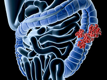 Digital medical illustration: Perspective x-ray view of human colon with tumor. Anatomically correct.