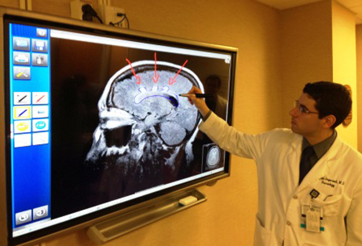 Resident showing brain issue on a monitor