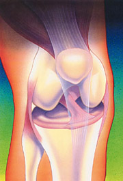 Knee Arthroscopy, Figure 1