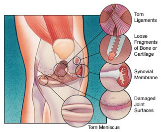 Knee Arthroscopy, Figure 3