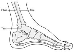 Broken Ankle illustration