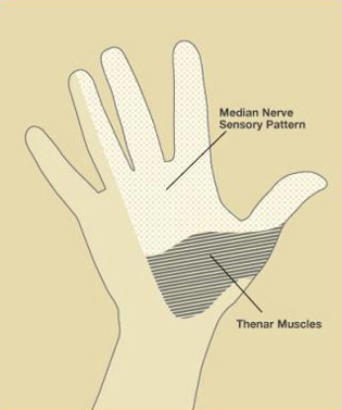 Carpal Tunnel, Figure 2