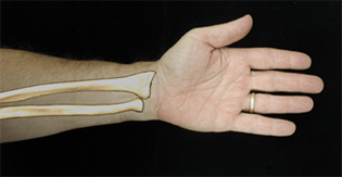 Distal Radius Fracture (Colles' Fracture) | UConn