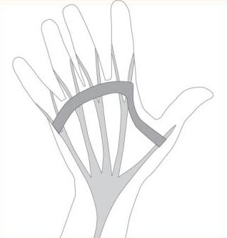 Dupuytren's Disease, Figure 4