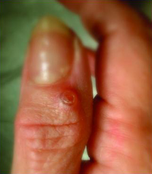 Ganglion Cysts, Figure 2