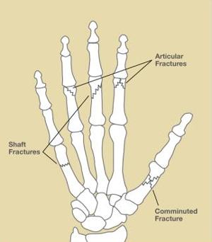 Hand Fractures, Figure 1