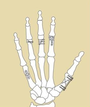 Hand Fractures, Figure 2