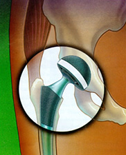 Total Hip Replacement, Figure 1
