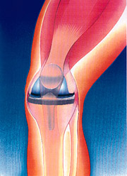 Total Joint Replacement Conditions and Treatments Total Knee Replacement, Figure 1