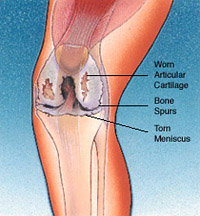 Total Joint Replacement Conditions and Treatments Total Knee Replacement, Figure 3