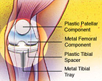 Total Joint Replacement Conditions and Treatments Total Knee Replacement, Figure 4