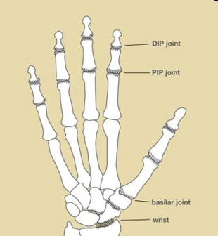 Figure 1: Joints commonly affected by osteoarthritis.