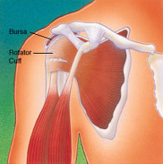 Shoulder Surgery, Figure 2