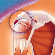 Impingement and Partial Rotator Cuff Tears