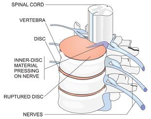 Comprehensive Spine Center, Figure 1