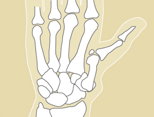 Figure 2: In severe cases, the thumb collapses into the palm, causing a zig-zag deformity.