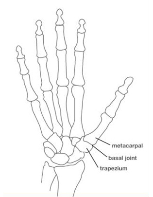 Arthritis At The Base Of The Thumb Uconn Musculoskeletal Institute