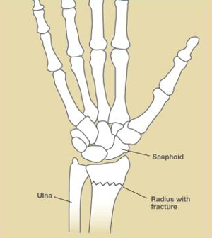 Wrist Fractures, Figure 1