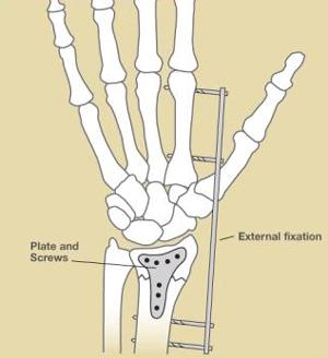 Wrist Fractures, Figure 2
