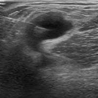Needle-guided Aspiration of the Achilles