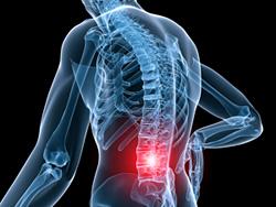 Back Pain, Figure 1
