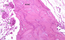 Figure1: Large, plump osteoclasts (OCL) resorbing bone (BONE). The divots in the adjacent bone indicate that these osteoclasts are active.