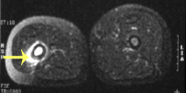The MRI corresponding to the X-ray seen in Figure 2a is seen in Figure 2b (coronal view) and Figure 2c (cross-section).