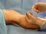 Needle biopsy