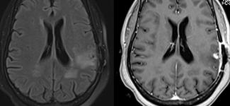 MRI scans of a brain