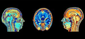 MRI scans of normal brains
