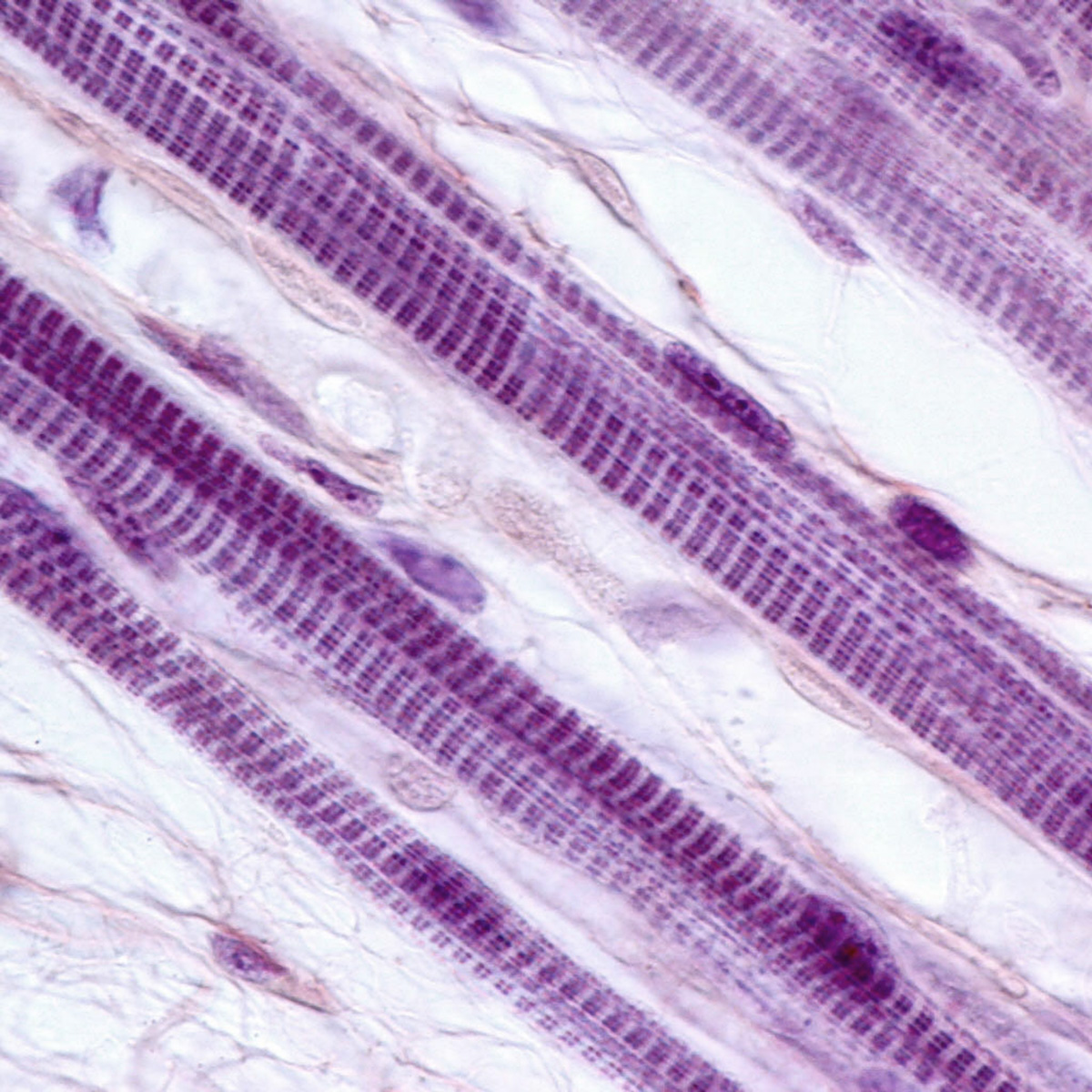Skeletal muscle fibers (Shutterstock)