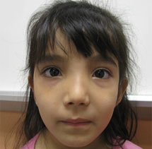 Girl with Craniometaphyseal Dysplasia (CMD)