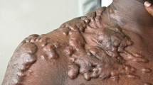 Keloids on a person's shoulder and arm