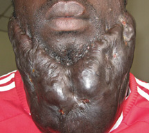 Keloid on a man's face
