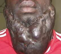 Keloid on a man's face