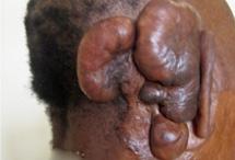 Keloids near a person's ear