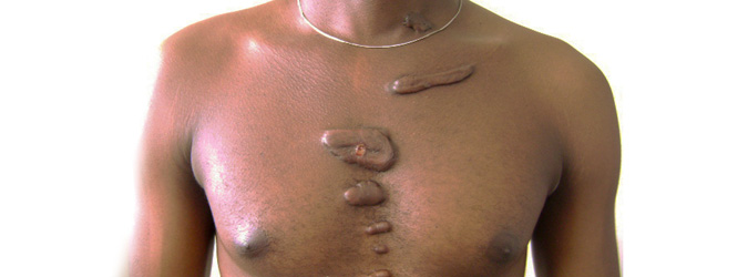 Keloids on a man's chest