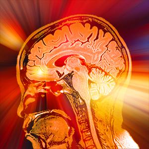 Brian MRI