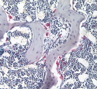 Light micrograph of trabecular bone with alkaline phosphatase-stained osteoclasts (pink) on the bone surface.