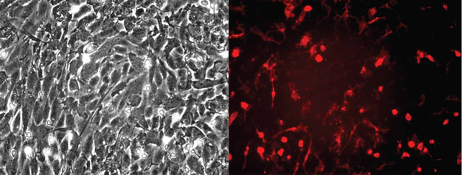 macrophages co-cultured with splicing-mutated endothelial cells