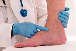 Lower limb vascular examination