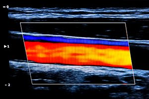 Ultrasound of carotid artery