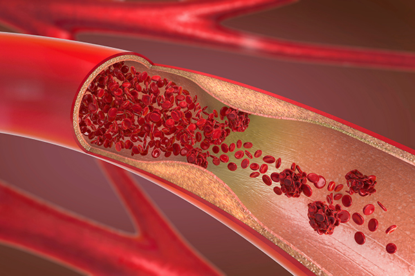 Illustration of a constricted and narrowed artery with blood clotting