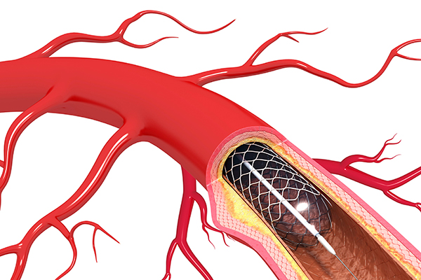 Stent used to open clogged artery