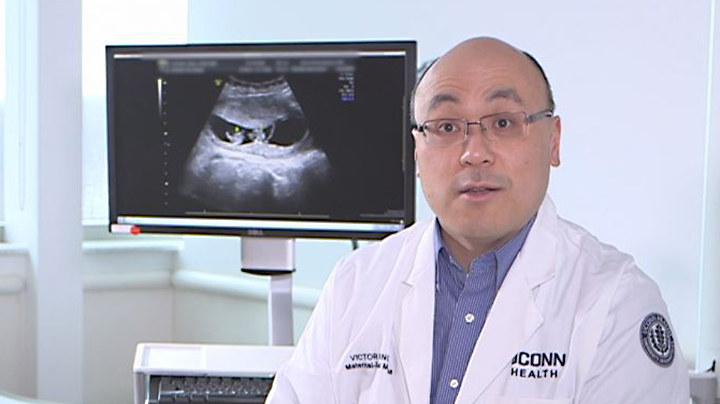 Dr. Victor Fang with ultrasound showing triplets
