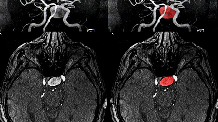 Magnetic resonance image showing a cerebral artery aneurysm