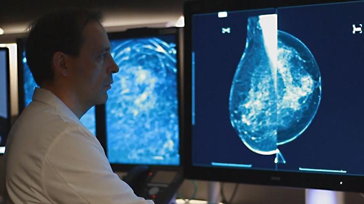 Alex Merkulov, M.D., reviewing a mammogram